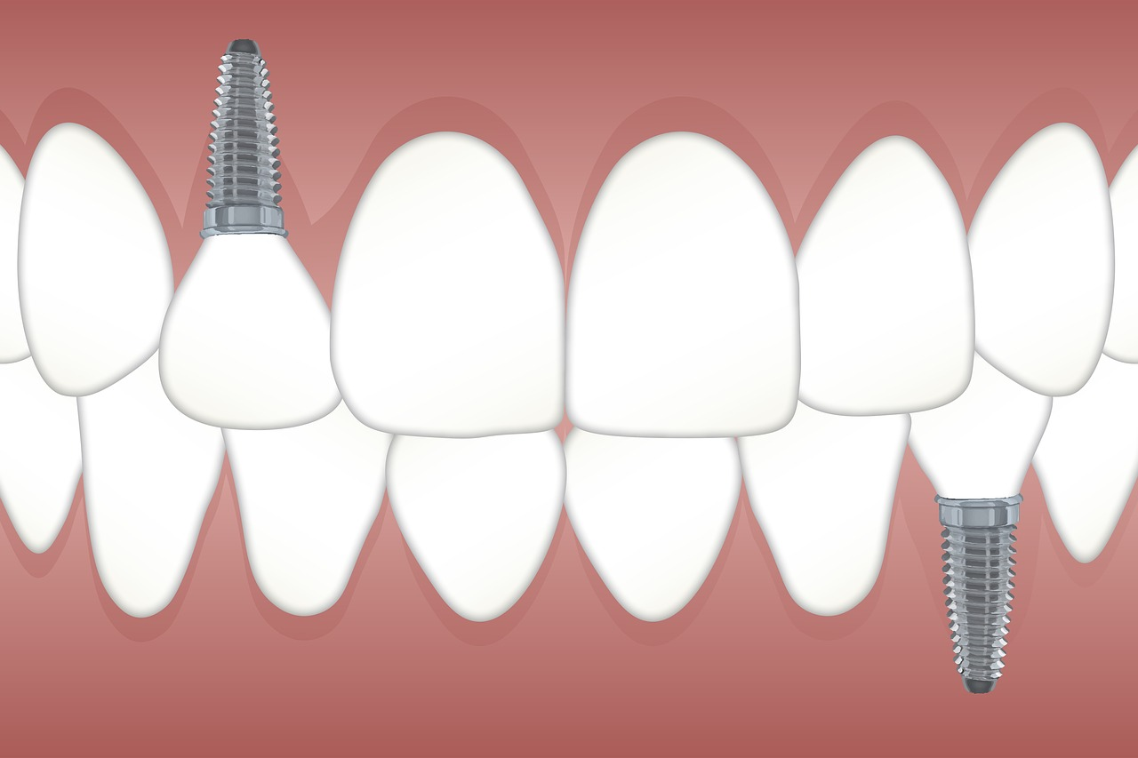 Clínica Dental Atenea, Implantología: Implante dental