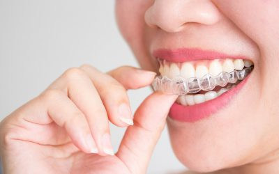 Todo lo que necesita saber sobre Invisalign: la ortodoncia invisible